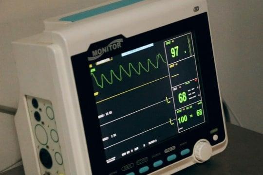 Laboratory Testing EKG test